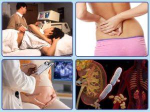Стенд при пиелонефрите у беременных