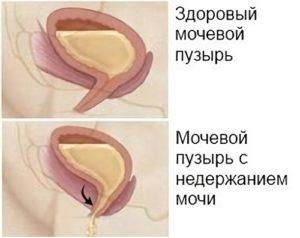 Недержание мочи у мужчин после операции чем лечить