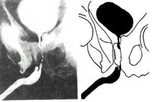 Уретрография у женщин