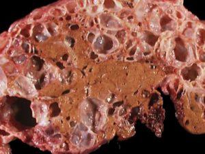 Продолжительность жизни при поликистозе печени и почек