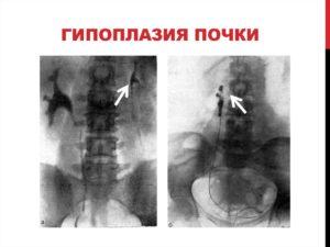 Что такое гипоплазия почки у взрослого человека