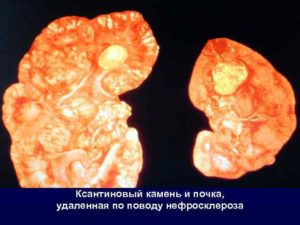 Камни в почках при сахарном диабете