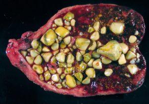 Где могут быть камни в организме человека