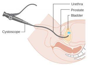 Что такое цистоскопия мочевого пузыря у мужчин
