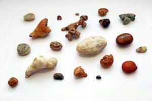 Что способствует появлению камней в почках