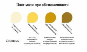Какой нормальный цвет мочи у взрослого