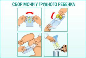 Как собрать мочу у месячного ребенка девочки