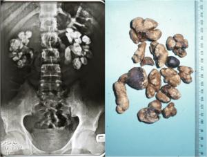 Камни в почках у ребенка 2 года симптомы