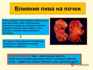Можно ли пить алкоголь когда камни в почках