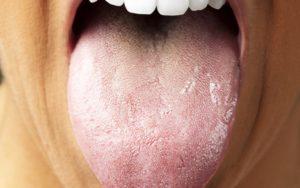 При вич сухость во рту