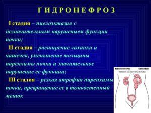 Как лечить пиелокаликоэктазия почки