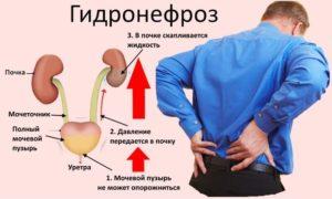 Гидронефроз чем опасен и как лечить
