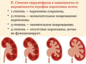 Гидронефроз 3 степени операция