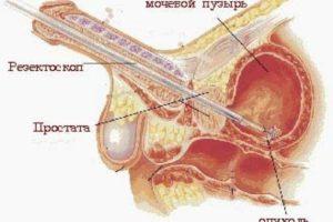 Зуд в мочевом канале у женщин