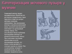 Постановка мочевого катетера у мужчин