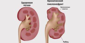 Нефрит у беременных лечение