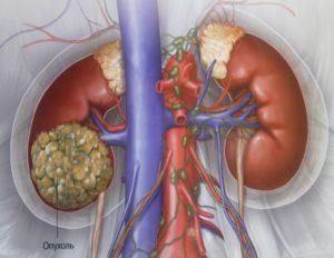Кистозный рак почки