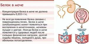 Повышенный белок в моче у мужчин