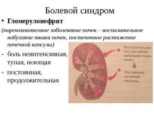 Болевой синдром гломерулонефрит