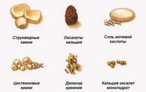 Виды камней в почках по химическому составу