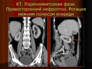 Правосторонний нефроптоз поджелудочной железы