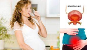 Цистит в начале беременности