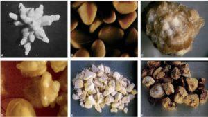 От каких продуктов образуется песок в почках
