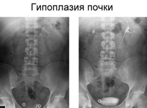 Гипоплазия правой почки у ребенка лечение