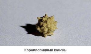 Как лечить камни в почках коралловые