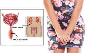 Жжение в области уретры у женщин причины