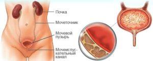 Болит мочевой пузырь и почки у мужчин