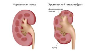 Можно ли заразиться пиелонефритом
