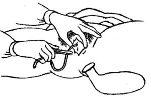 Как поставить катетер в мочевой пузырь