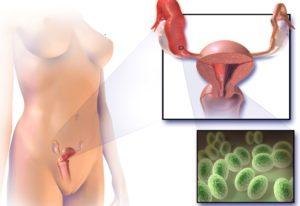 Можно ли заразиться циститом от женщины