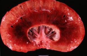 Гламированный нефрит почек лечение