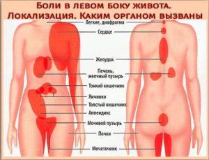 Боль в левом боку температура