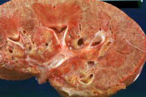 Острый пиелонефрит лечение урология