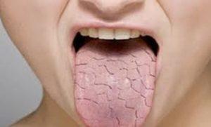 Сухость во рту при заболевании почек
