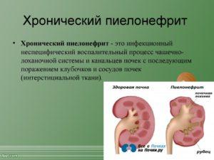 Как долго лечится хронический пиелонефрит