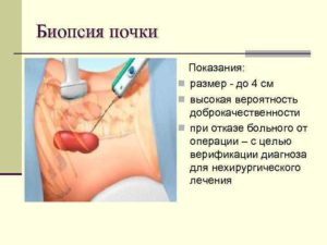 Больно ли делать биопсию почек