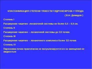 Классификация гидронефроза по степени