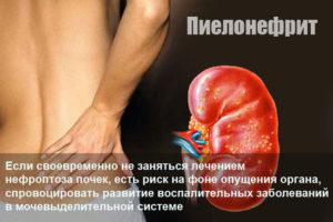 Пиелонефрит и запор