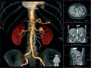 Что лучше компьютерная томография или мрт почек