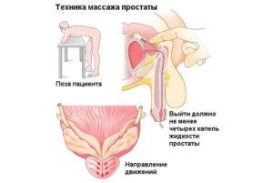 Массаж простаты помогает ли от простатита