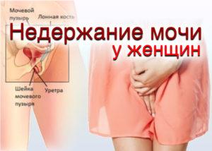 Недержание мочи у женщин после 30 лет причины и лечение