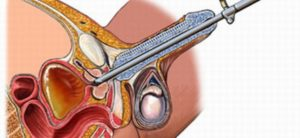 Стимуляция уретры у мужчин