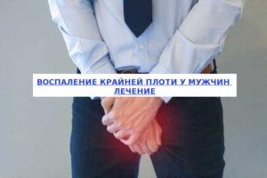 Воспаление у мужчин чем лечить