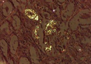 Амилоидоз клубочков почек