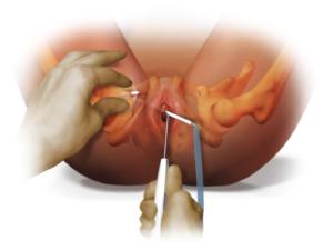 Болит влагалище после мочеиспускания