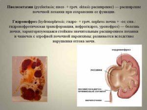 Что такое уретеропиелокаликоэктазия левой почки